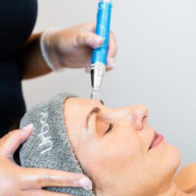 Skin Needling - Mesotherapy
