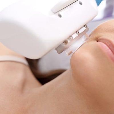 IPL Skin Rejuvenation